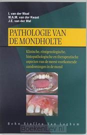 Pathologie van de mondholte