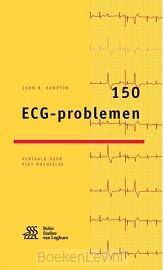 150 ECG-problemen