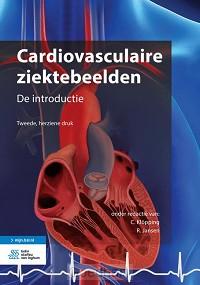 Cardiovasculaire ziektebeelden