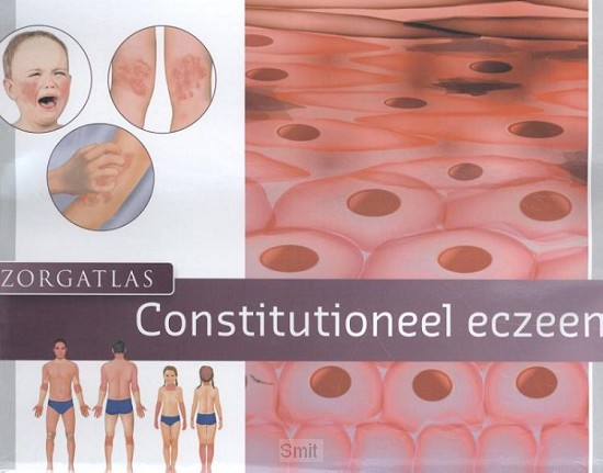 Zorgatlas constitutioneel eczeem
